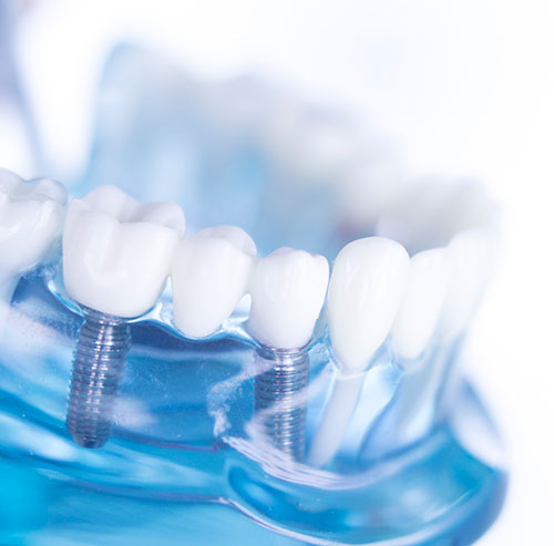 Dental implants, tooth replacement
